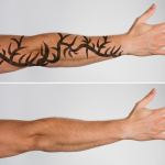 tattoo removal cream
